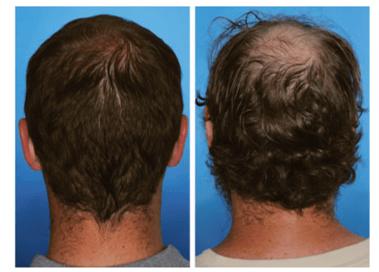 epigenética y calvicie