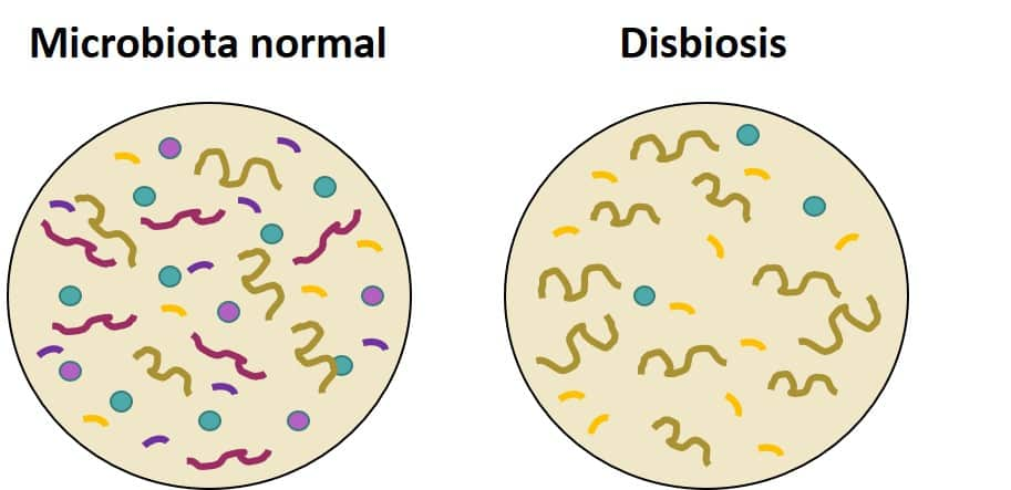 disbiosis intestinal
